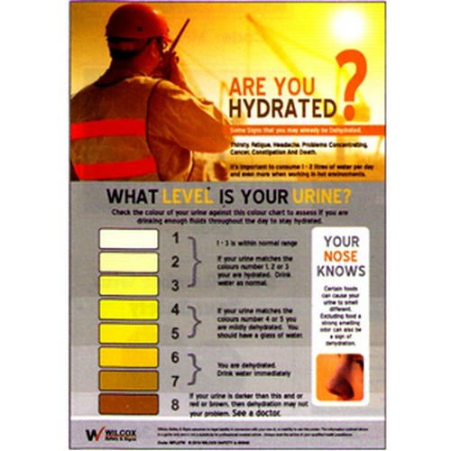 Dehydration Scale Poster